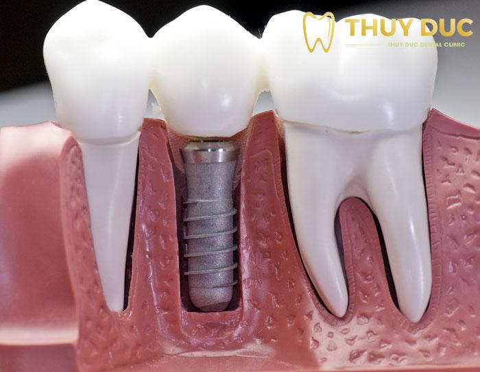 Tìm hiểu chi tiết quy trình phục hình răng sứ trên implant 1