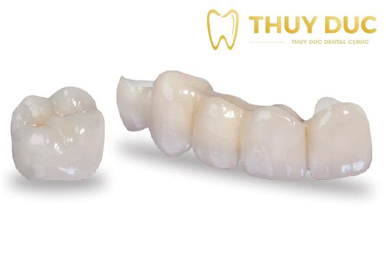 Răng sứ implant cao cấp 1