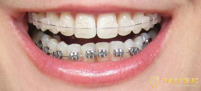 Niềng răng mắc cài nào tốt nhất hiện nay? 1