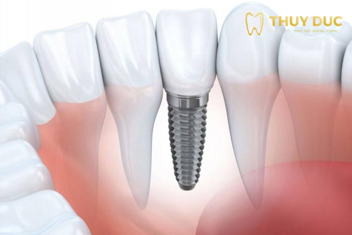 Bước 3: Tiến hành gắn răng sứ trên trụ implant và hẹn khách hàng tái khám 1