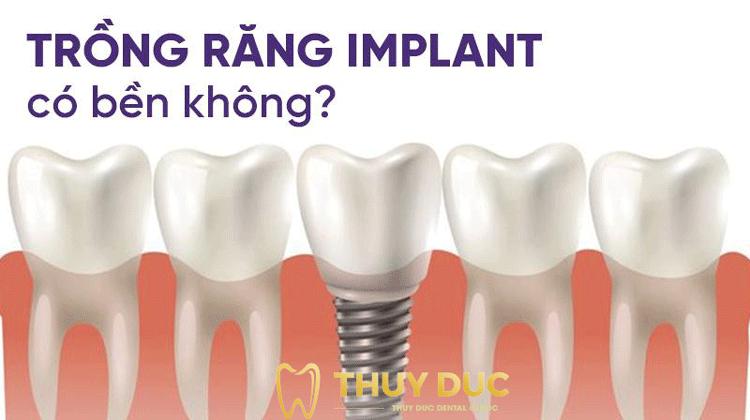Tuổi thọ tối đa của răng Implant là bao lâu? 1