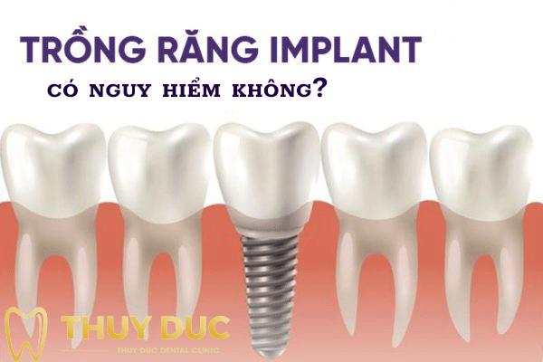 Trồng răng implant có nguy hiểm không? 1