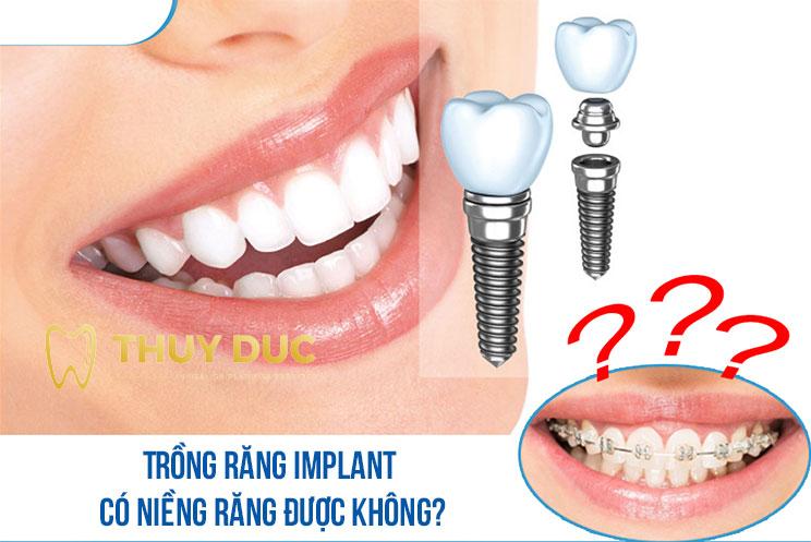 [Tư vấn] Trồng răng implant có niềng răng được không? 1