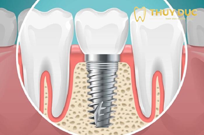 7 điều cần lưu ý trước khi trồng răng Implant 1