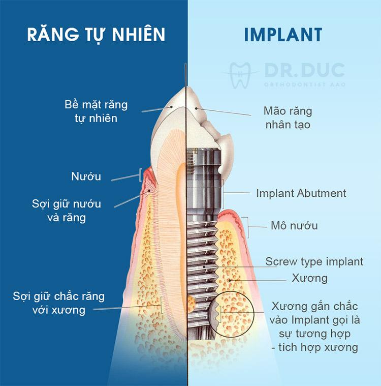 Trồng răng Implant là gì? 1