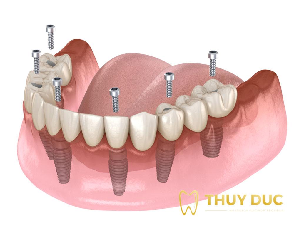 Trồng răng giả nguyên hàm bằng cấy implant loại nào tốt và tiết kiệm nhất? 1