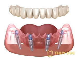 Trồng răng nguyên hàm bằng cấy Implant loại nào tốt nhất? 1