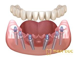 Trồng răng nguyên hàm bằng cấy Implant loại nào tốt nhất? 2