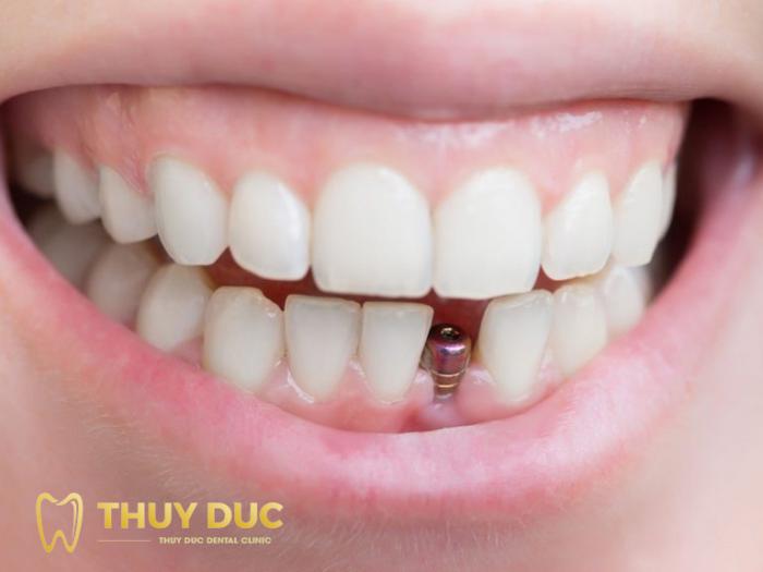 Khe răng bị mất quá hẹp 1