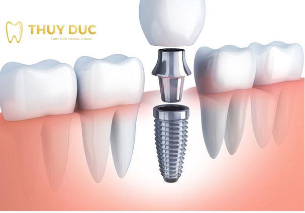 Thế nào là trồng răng mini implant? 1