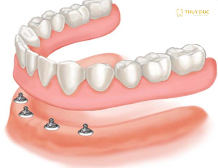 Răng giả tháo lắp trên trụ implant 1