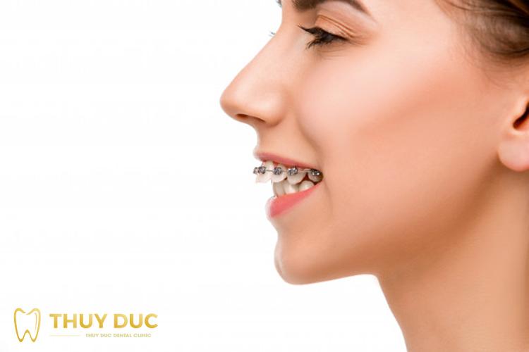 Ưu điểm vượt trội của niềng răng mắc cài kim loại 1
