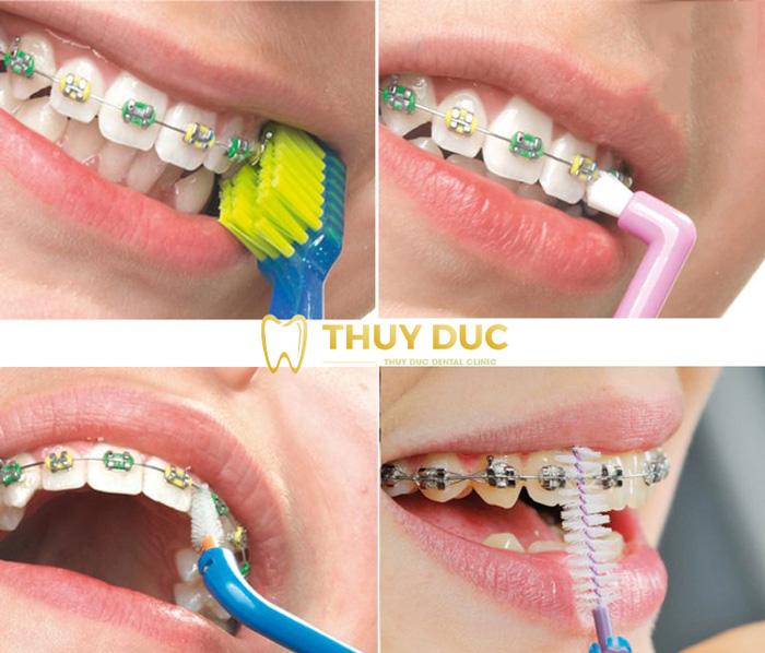 Chăm sóc, giữ gìn vệ sinh răng miệng 1