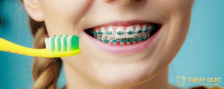 Vì sao bạn cần vệ sinh sạch răng miệng sau khi niềng răng? 1