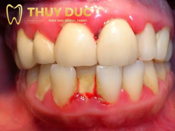 Viêm quanh răng 1