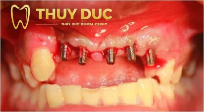 Trồng răng giá rẻ có an toàn không? 3