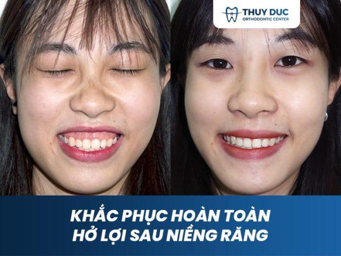 Niềng răng trong suốt có chữa được cười hở lợi không? 1