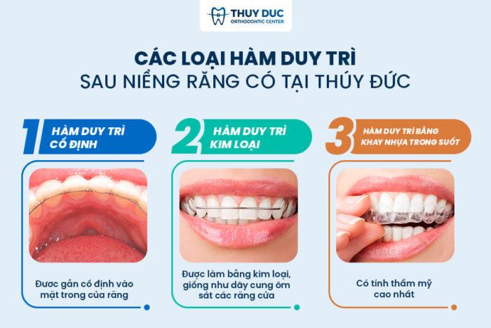 Quá trình niềng răng diễn ra như thế nào? 3