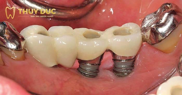 Trồng răng giá rẻ có an toàn không? 1