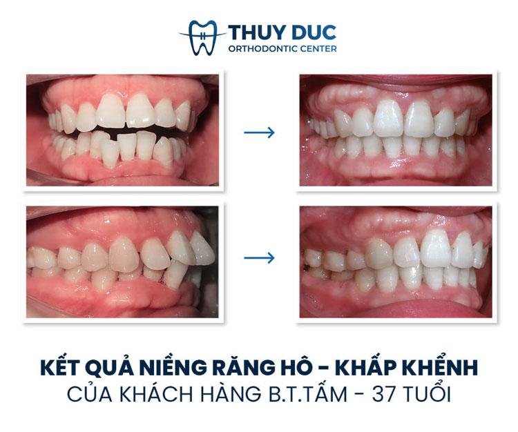 Răng hô 1