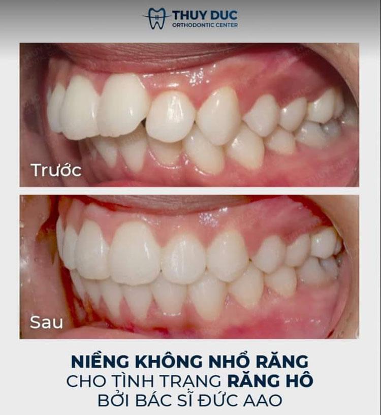 Hình ảnh khách hàng trước và sau khi niềng răng hô, vẩu 3