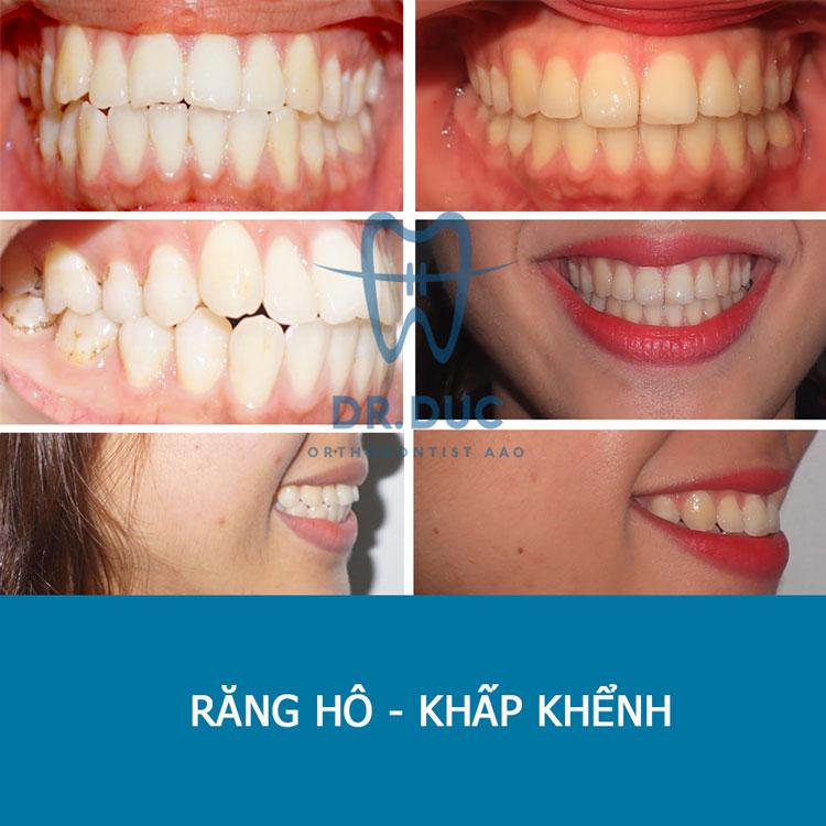 Hình ảnh khách hàng trước và sau khi niềng răng hô, vẩu 4