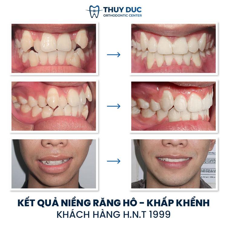 Hình ảnh trước - sau khi niềng răng xô lệch, chen chúc, khấp khểnh 3