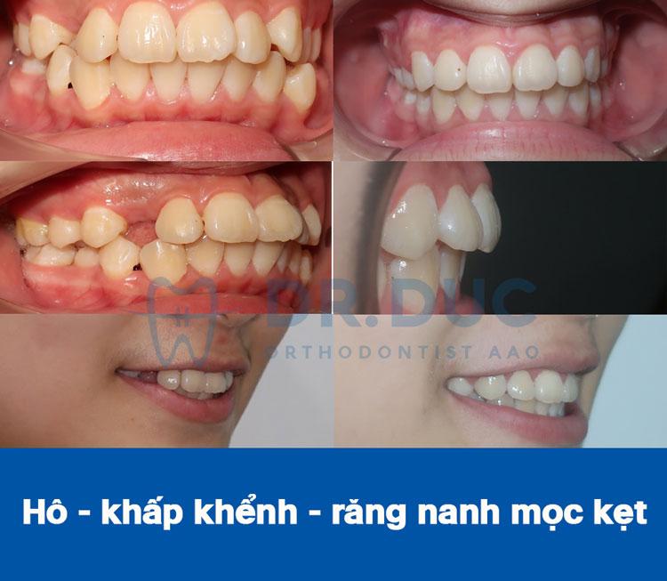 Hình ảnh khách hàng trước và sau khi niềng răng hô, vẩu 5