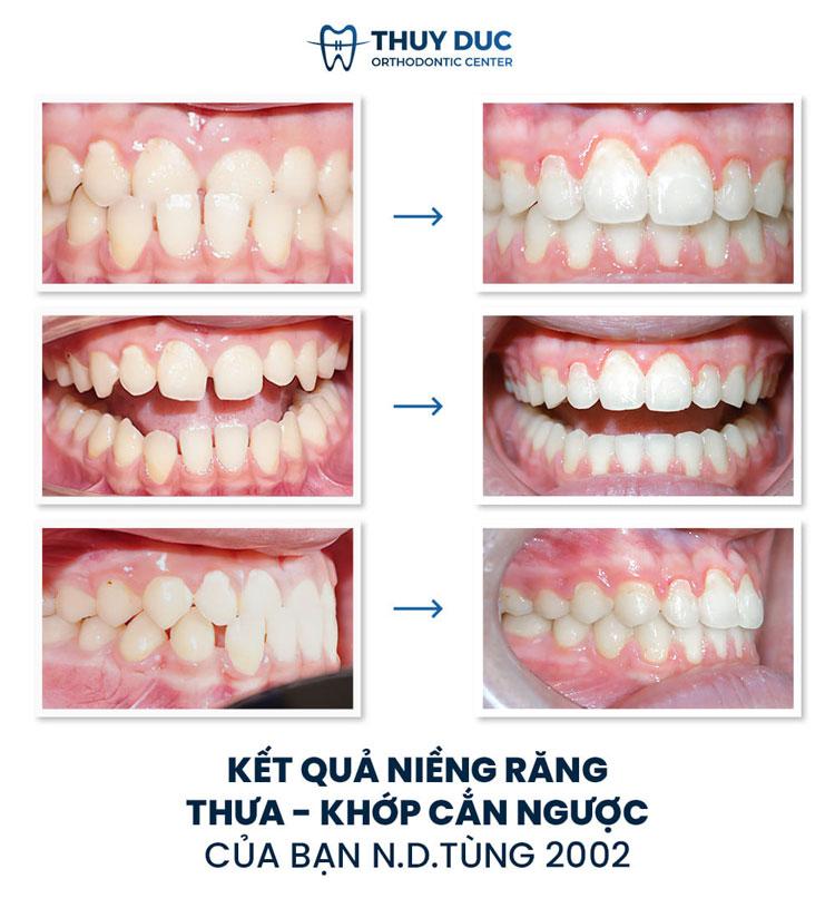 Hình ảnh trước - sau khi niềng răng móm 2
