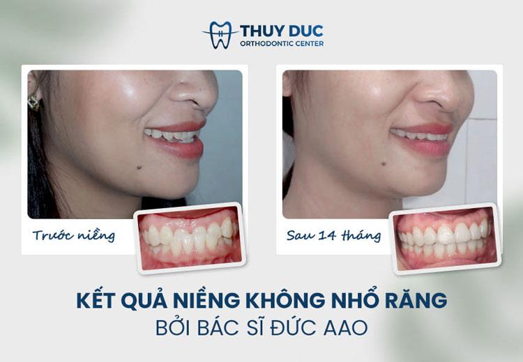 Răng móm 1