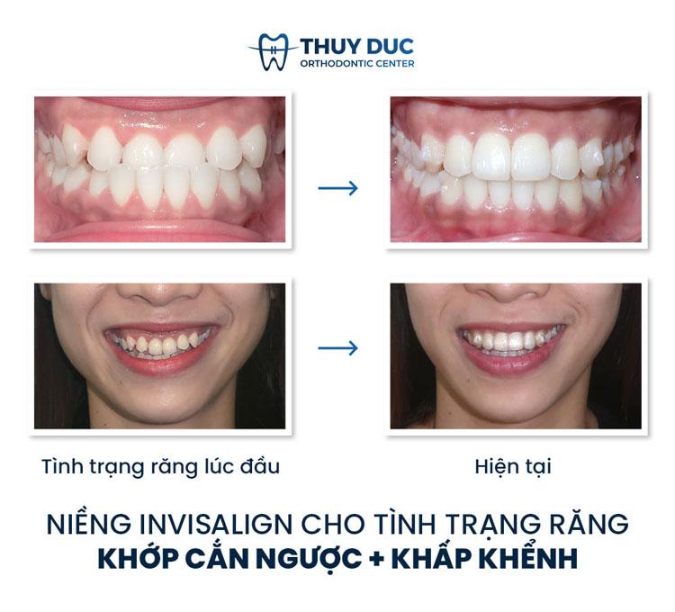 Hình ảnh trước - sau khi niềng răng móm 1