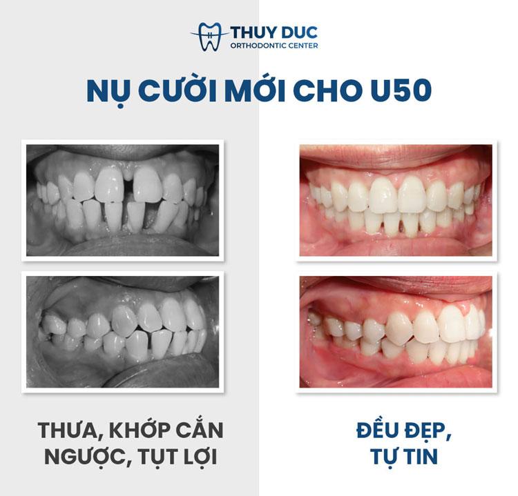 Hình ảnh khách hàng trước và sau khi niềng răng thưa 4