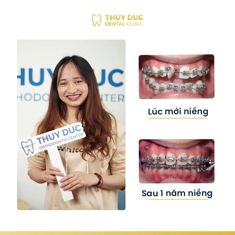 Hình ảnh khách hàng trước và sau khi niềng răng thưa 1