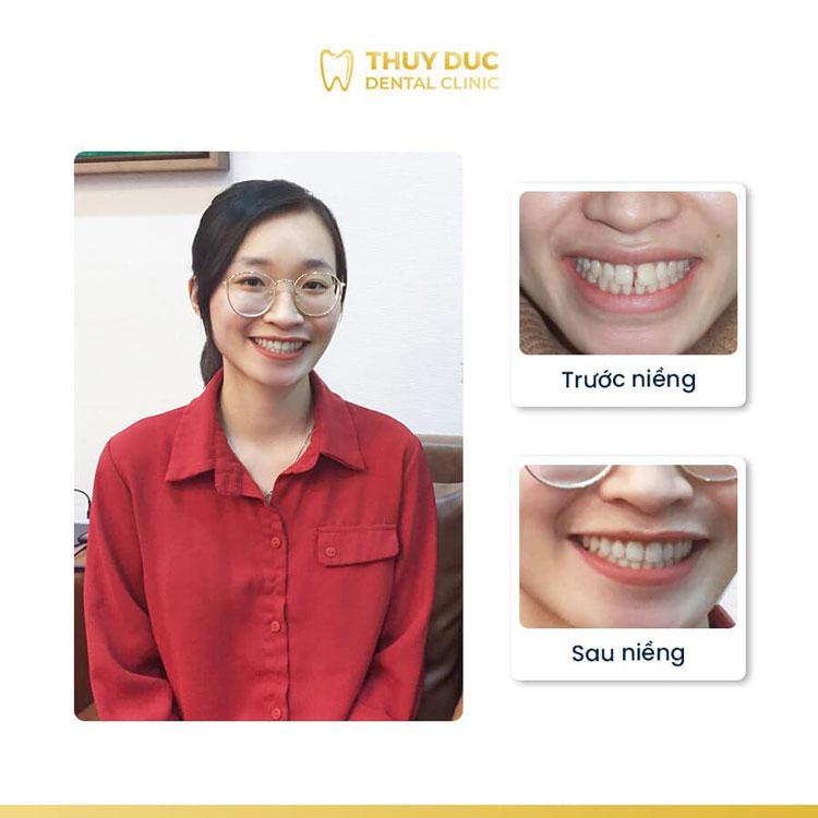 Hình ảnh khách hàng trước và sau khi niềng răng thưa 2