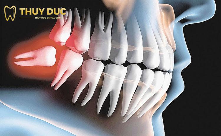 Răng khôn có tác dụng gì không? 1