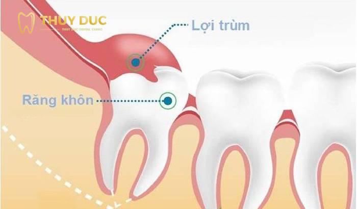 Răng khôn có tác dụng gì không? 2