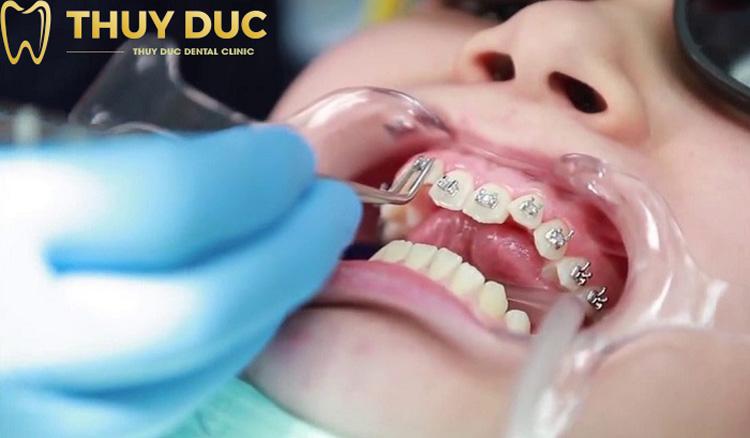 Lựa chọn công nghệ niềng răng không phù hợp 1
