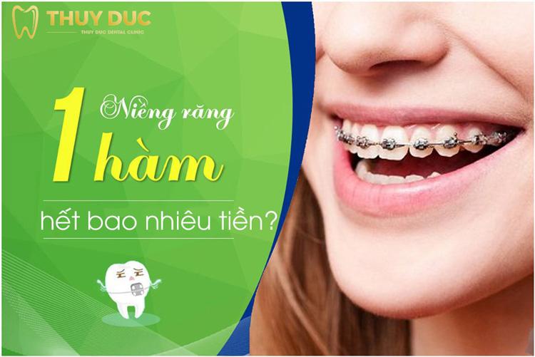 Niềng răng 1 hàm hết bao nhiêu tiền? 1