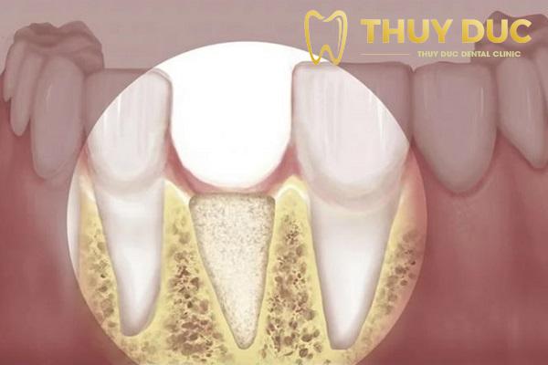 Bị hóp má do tiêu xương ổ răng 1