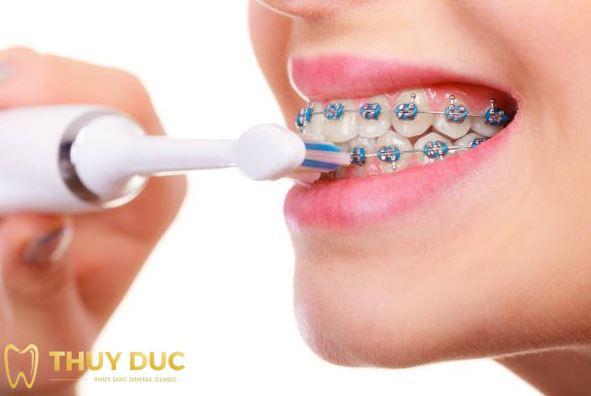 Nên làm gì để ngăn chặn tụt lợi khi niềng răng? 1