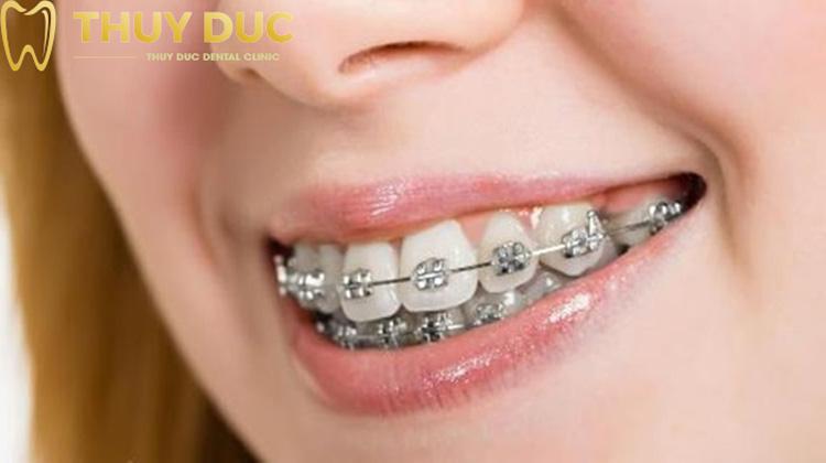 3. Niềng răng cho hàm hô nhẹ 1