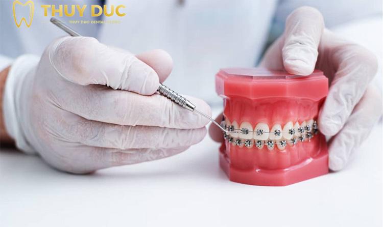 Phương pháp niềng răng mắc cài bằng kim loại 1