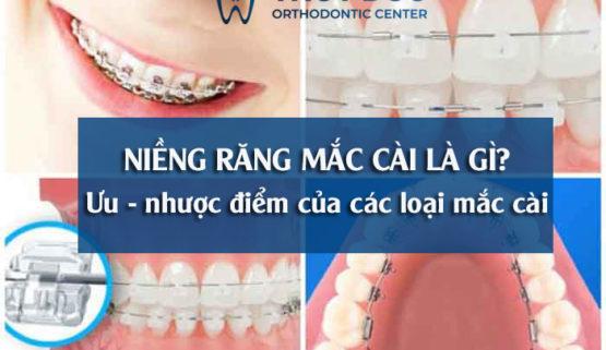 Niềng răng mắc cài là gì? Ưu nhược điểm của từng loại mắc cài