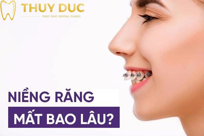 Niềng răng mất bao lâu? 1