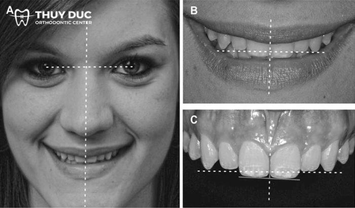 Do sự cố xảy ra khi niềng răng 1