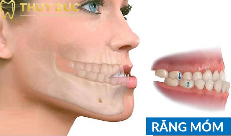 Tình trạng niềng răng xong bị móm là như thế nào? 1
