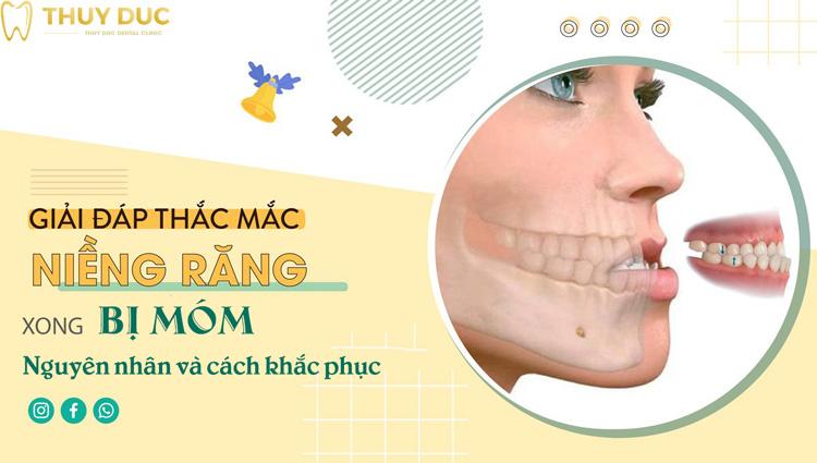 Niềng răng xong bị móm - Nguyên nhân và cách khắc phục hiệu quả 1