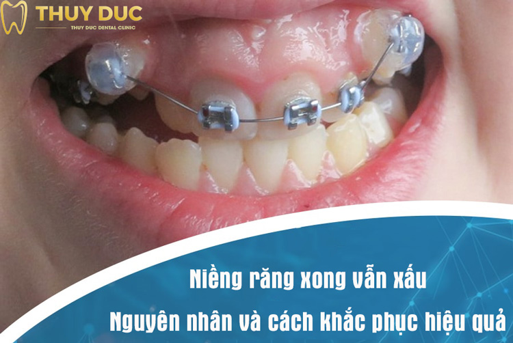 Vì sao niềng răng xong vẫn xấu? Có khắc phục được không? 1