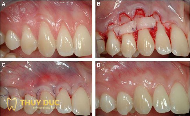 Niềng răng bị tụt lợi khắc phục thế nào? 1