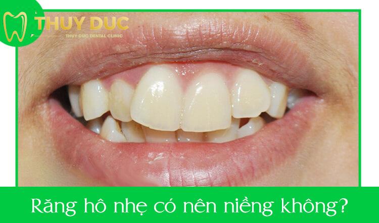 Răng hô nhẹ có nên niềng không? 1